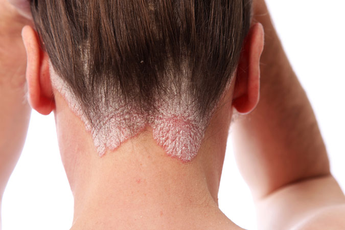 Psoriasis Treatment: Medications And Expectations