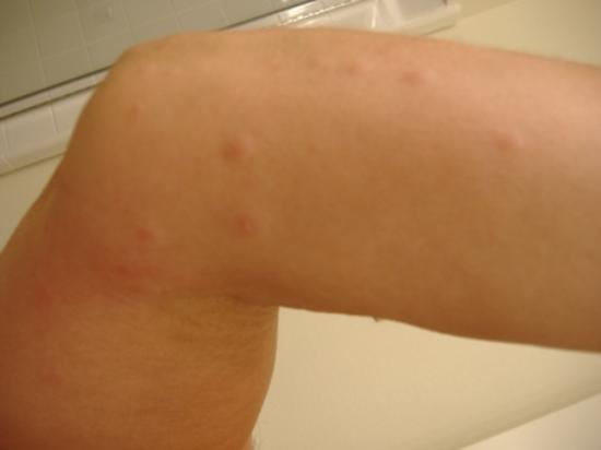 You Get Scabies From A Hotel Room
