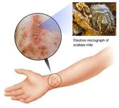 Scabies Infestation lasting after successful treatment!