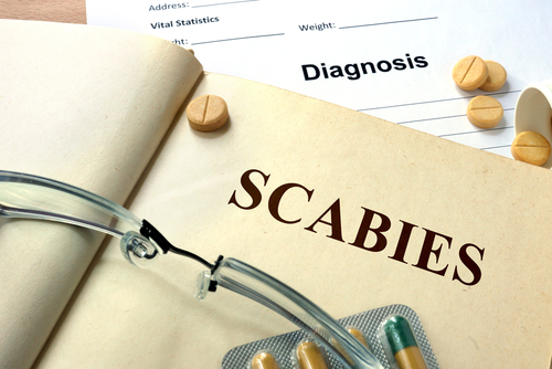 Scabies Treatment Over The Counter