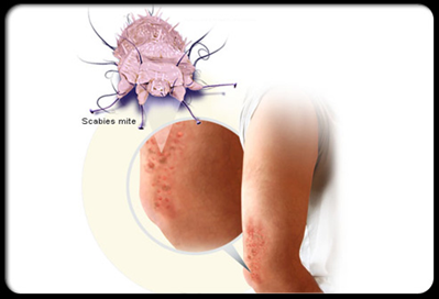 Scabies is a pest and can be transmitted by the farm