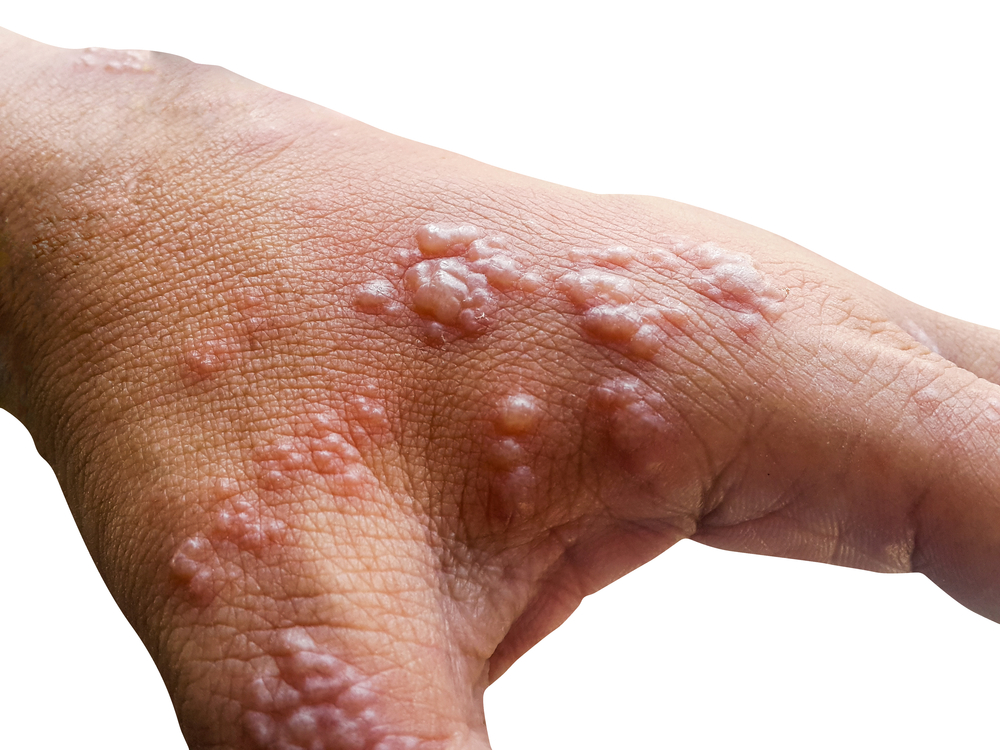 Some Facts About Shingles That You Need To Know