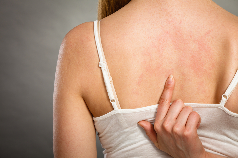 Soothe Your Dry Itchy Skin With These 7 Tips