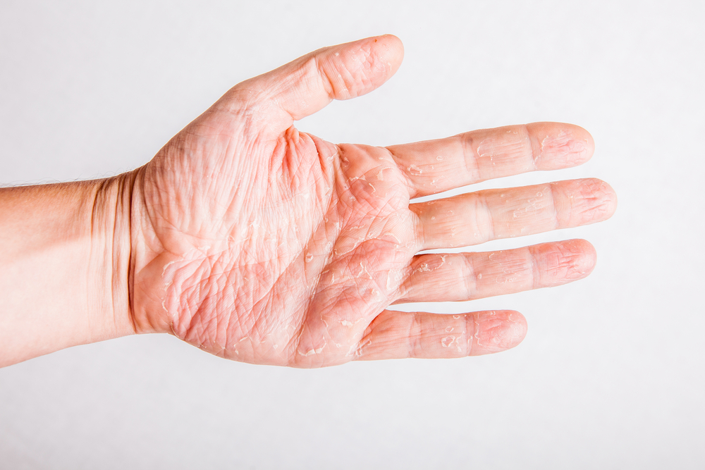 Types And Symptoms Of Psoriasis