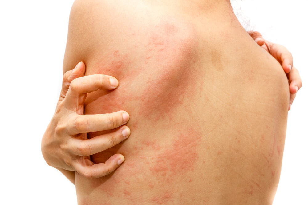 The Top Notch Ways to Get Rid of Hives
