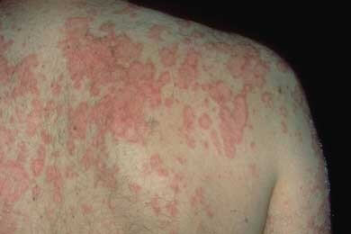 Lupus Skin Diseases Symptoms & Things To Take Care Of