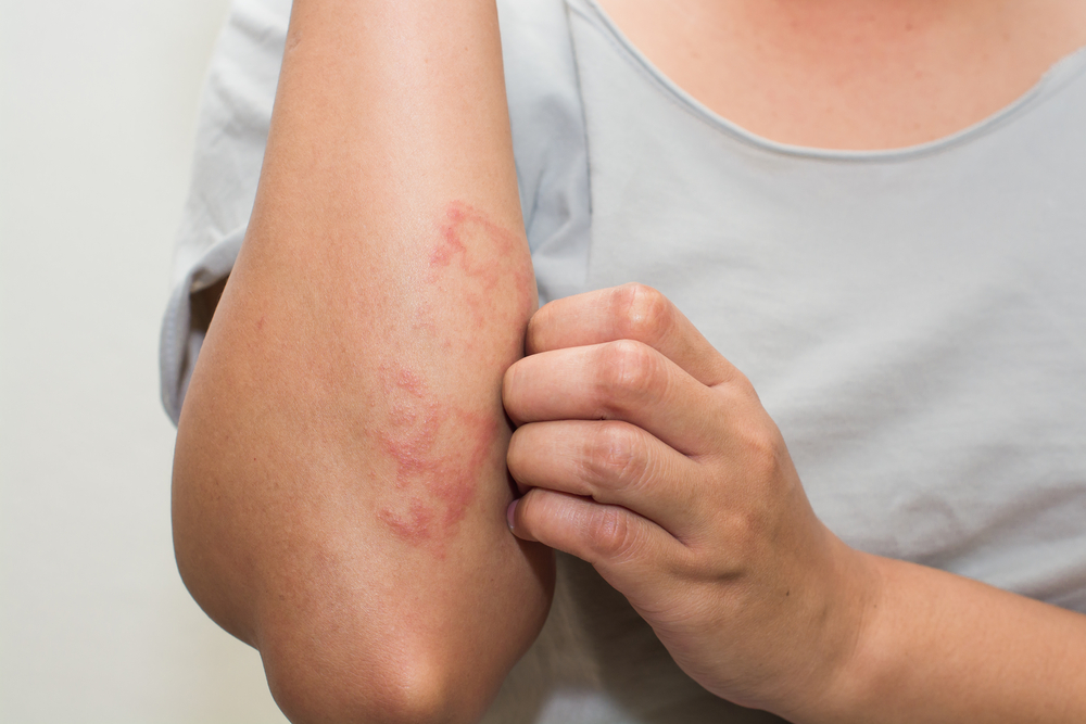 Time Taken By Scabies Treatment