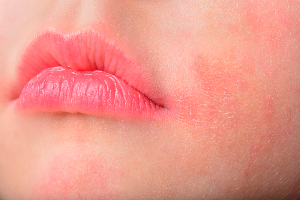 Tips for Reducing the Symptoms of Lip Eczema