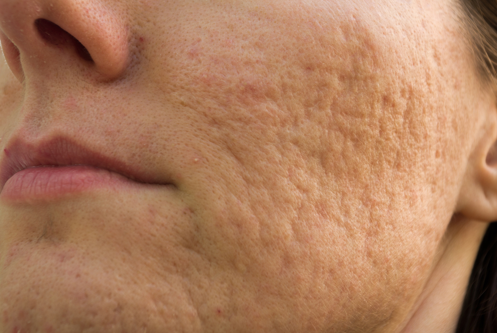 Viable Ways to Prevent and Treat Acne Scars