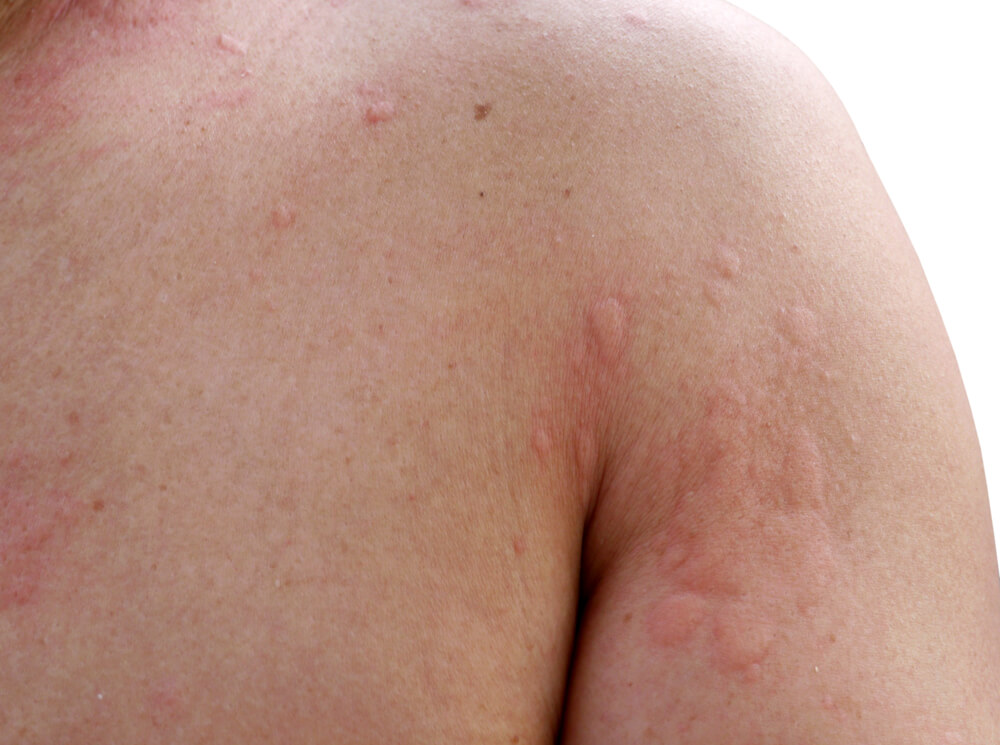 Want To Know About Hives? Take Care and Prevent It