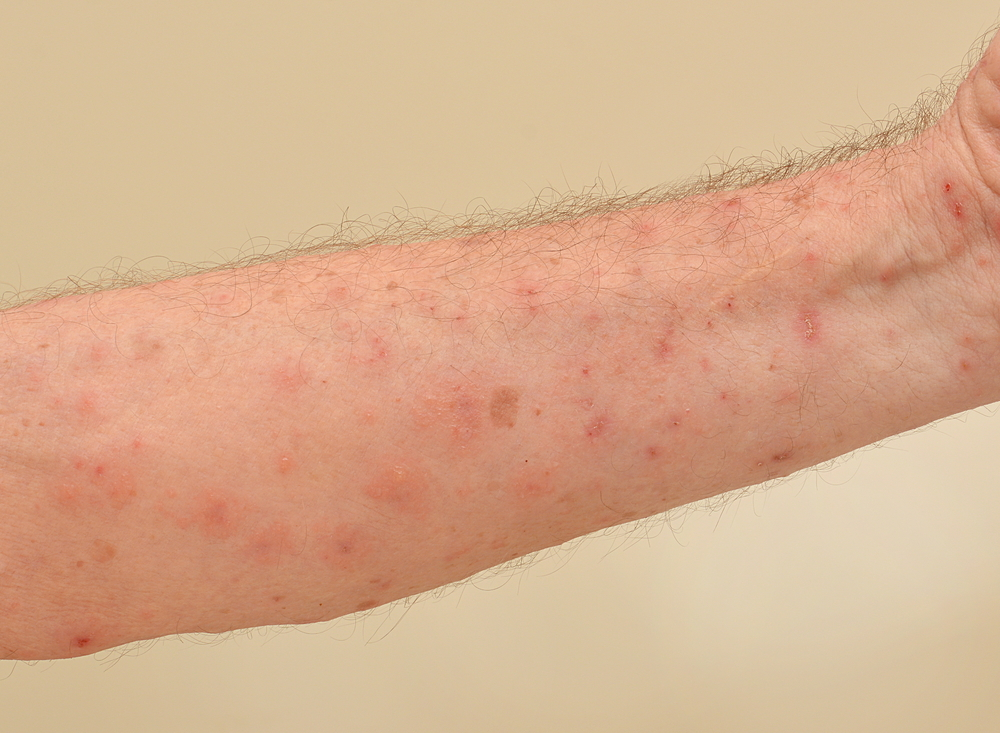 What are treatment options for scabies infested person?