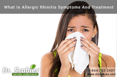 What Is Allergic Rhinitis Symptoms And Treatment