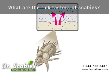 What are the risk factors of scabies?