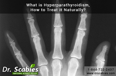 What is Hyperparathyroidism, How to Treat it Naturally?