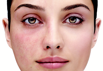 Your Personal Guide to Control Rosacea Naturally!