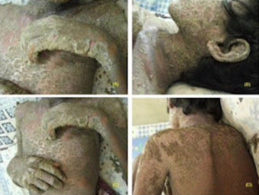 crusted scabies treatment