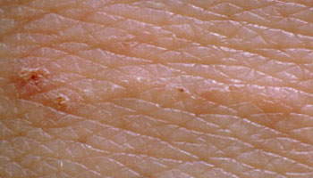 scabies burrow, scabies itch