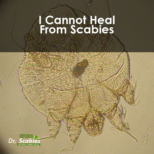 I Cannot Heal from Scabies